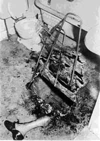 This all that remained of Helen Conway, a victim of SHC in 1964. The fire chief who reported on the case said her torso was consumed within 21 minutes, far too short a time for the 'wick effect' to have been the explanation