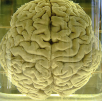 Formaldehyde Brain Brain preservation technique