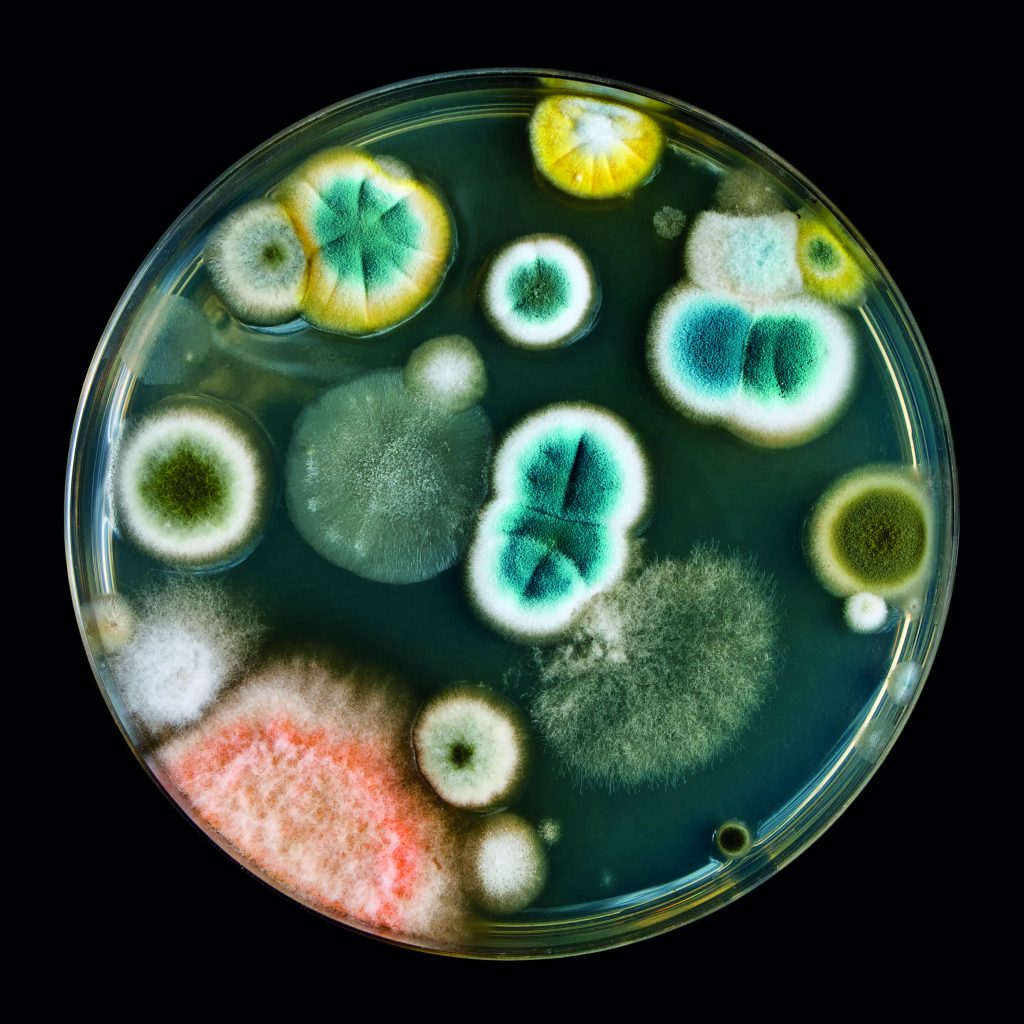 It is much harder to detect mycoplasma contamination compared to other bacterial or fungal contaminations.