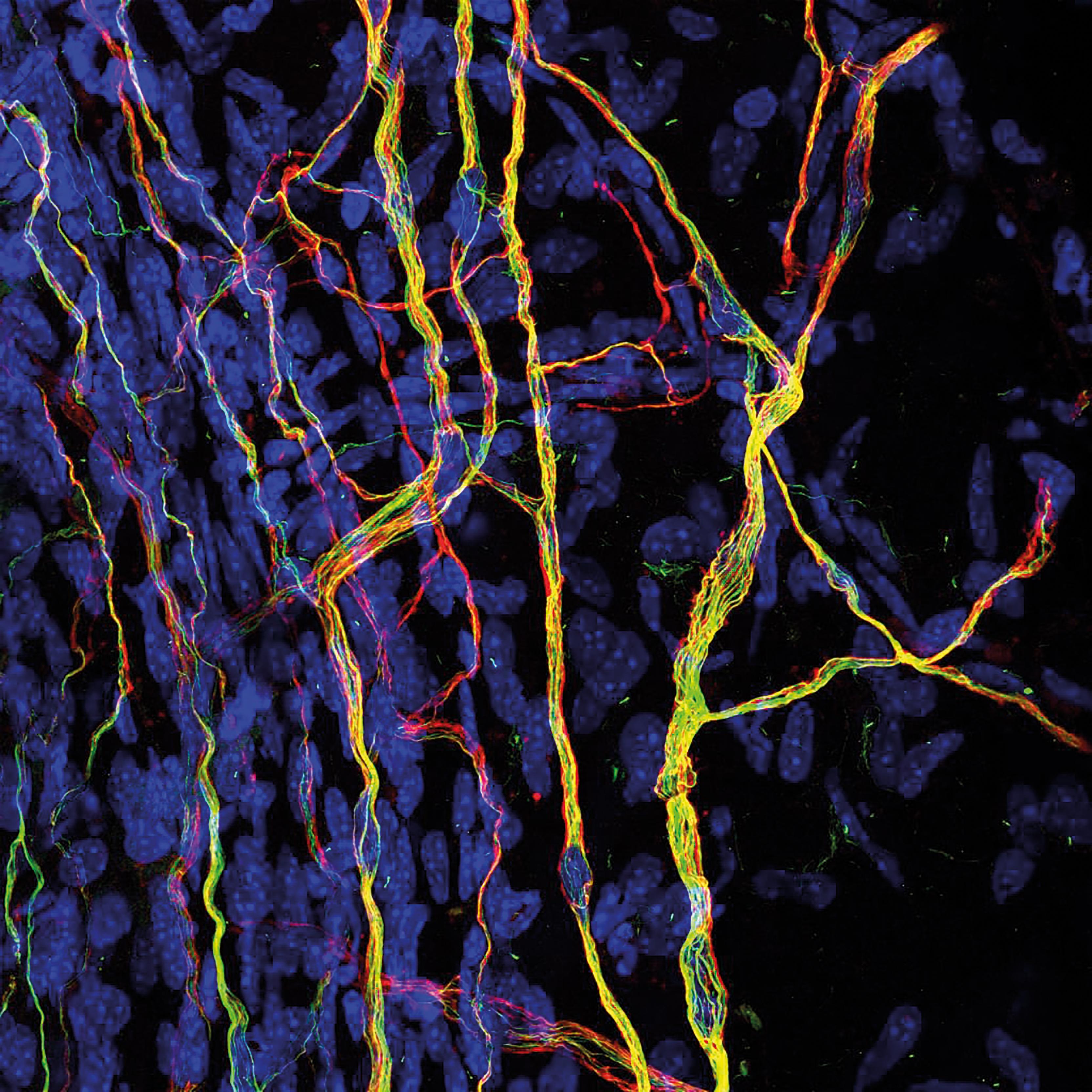 Image Of Distinction Nerve Endings In Cornea Laboratory News