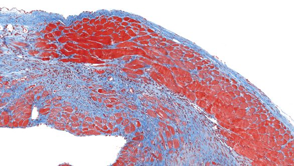 Gene therapy regenerates heart tissue - Laboratory News